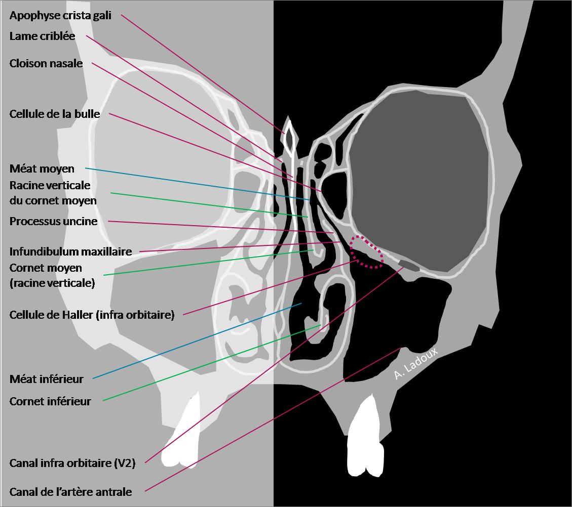 Anatomie coronale des sinus