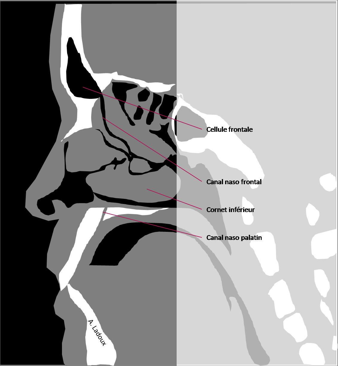 Anatomie sagittale des sinus
