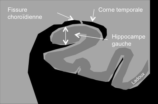 Hippocampe normal de l'hippocampe