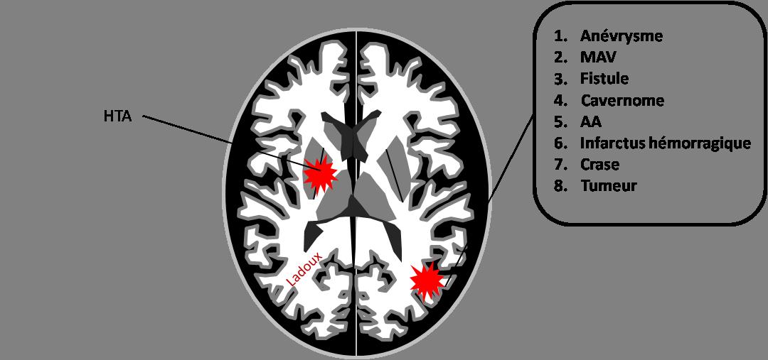 Hématomes cérébraux intra parenchymateux