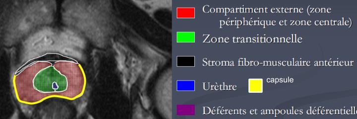 ABD - Prostate IRM 10-09-2014.pptx (1)