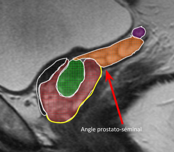 ABD - Prostate IRM 10-09-2014.pptx (2)