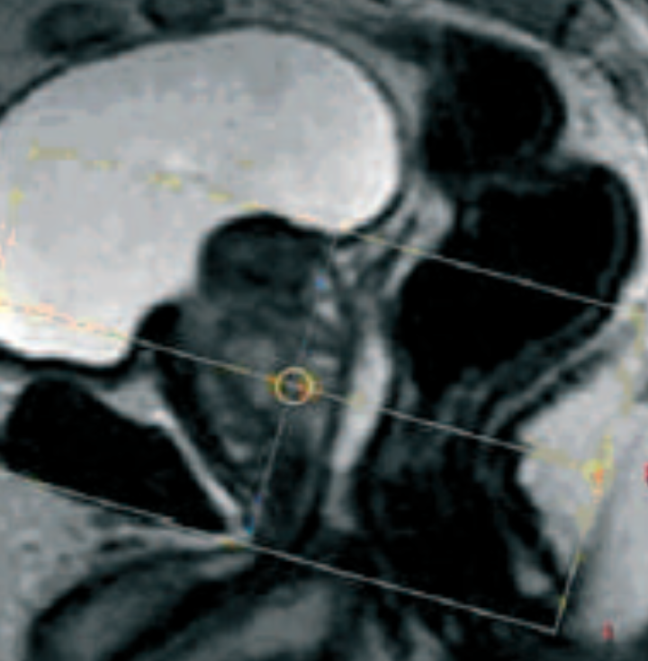ABD - Prostate IRM 10-09-2014.pptx