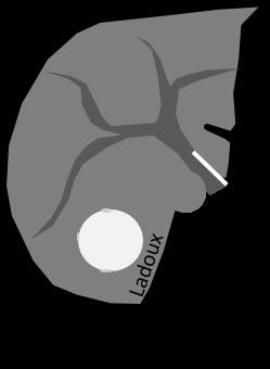 Scanner d'adénome au temps artériel