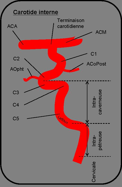Carotide interne