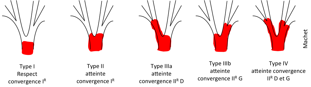 Cholangiocarcinome