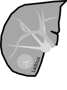 Scanner d'hyperplasie nodlaire focale au temps tardif