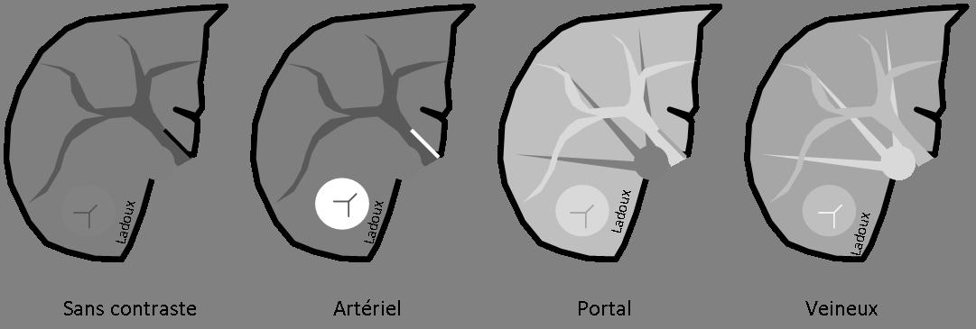 Hyperplasie nodulaire focale