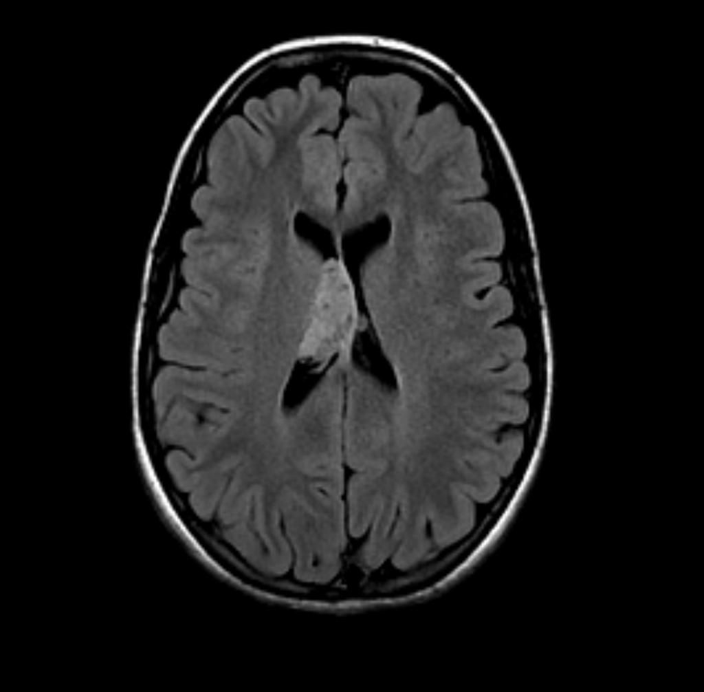 Neurocytome central