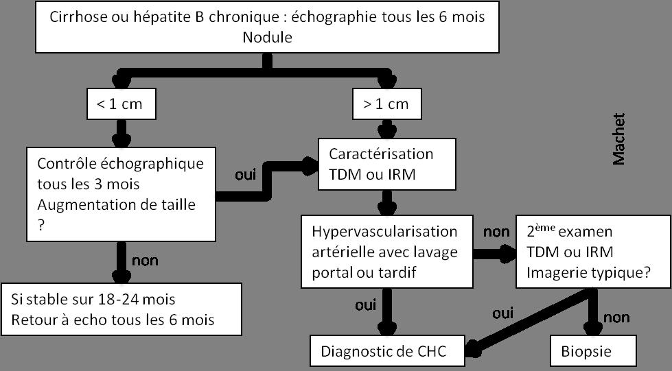 Foie – Tumeurs hépatiques – CHC – PinkyBone