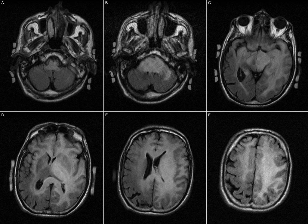 gliomatose cerebri