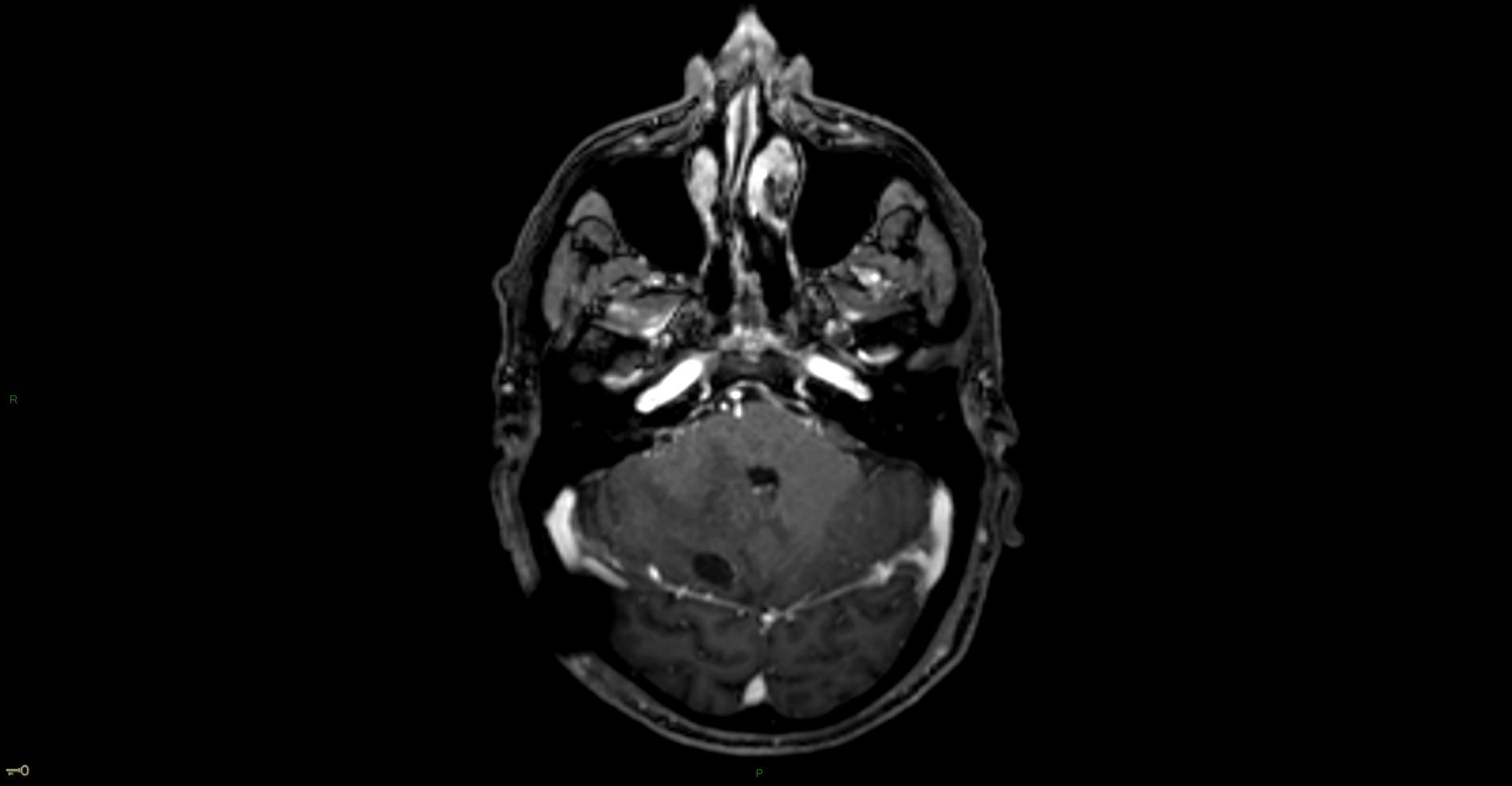 Hémangioblastome dans le cadre d'une maladie de Von Hippel Lindau