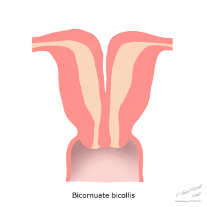 uterine-anatomical-abnormalities (1)