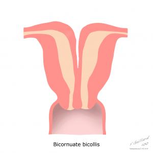uterine-anatomical-abnormalities (1)