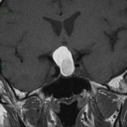 Craniopharyngiome