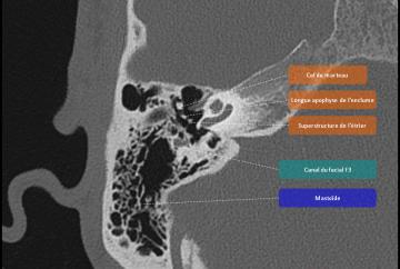 Anatomie rocher pinkybone for Fenetre mandibulaire