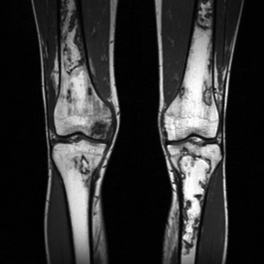 Infarctus osseux