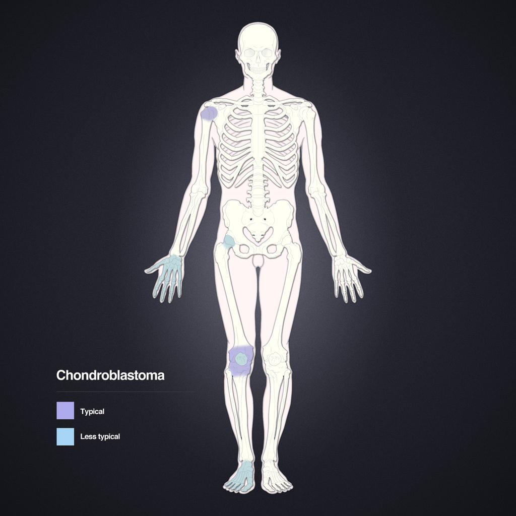 Chondroblastome