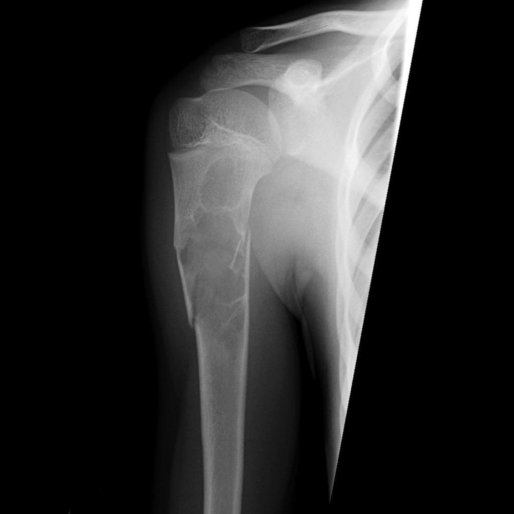 Kyste osseux essentiel