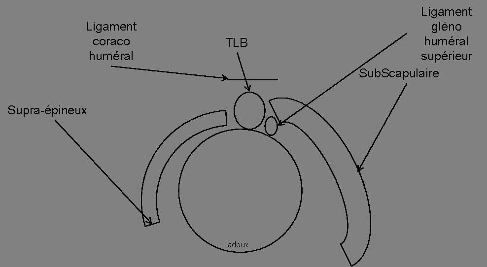 Echo épaule