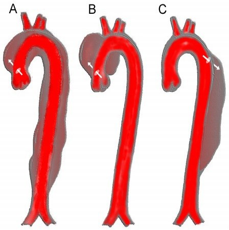 Aortic_dissection_class