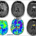 Lymphome cérébral