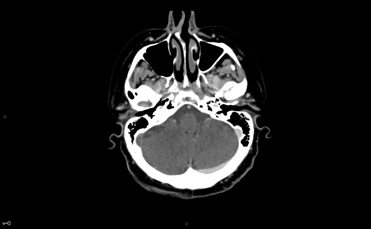 Thrombose veineuse cérébrale du sinus latéral droit