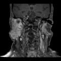 Syndrome de Gougerot-Sjögren (syndrome sec)