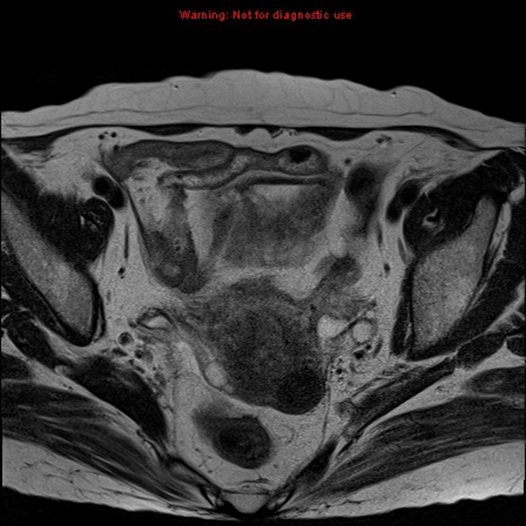 Cancer du col utérin