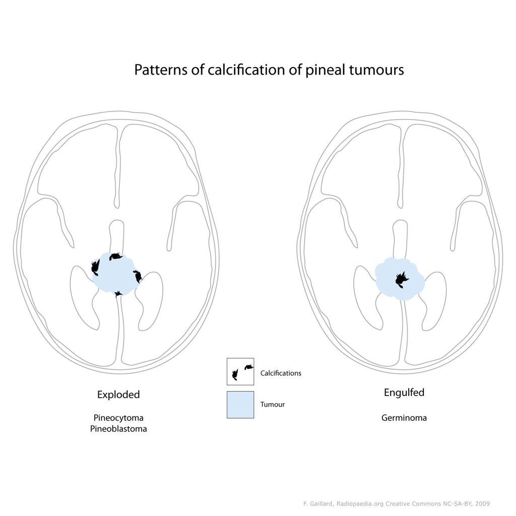 Calcifications de la glande pinéale