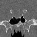 Macro adénome hypophysaire