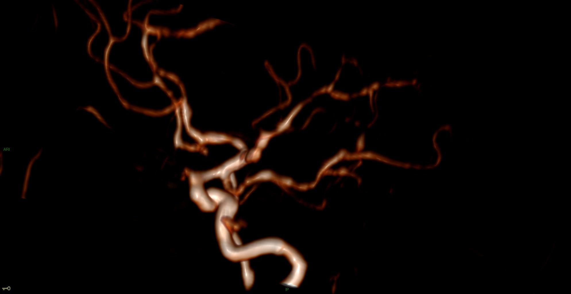 Syndrome de vasoconstriction réversible