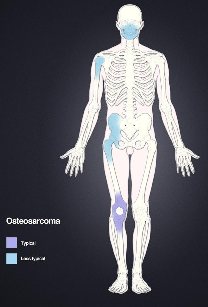 Ostéosarcome