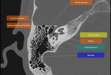 Anatomie du rocher