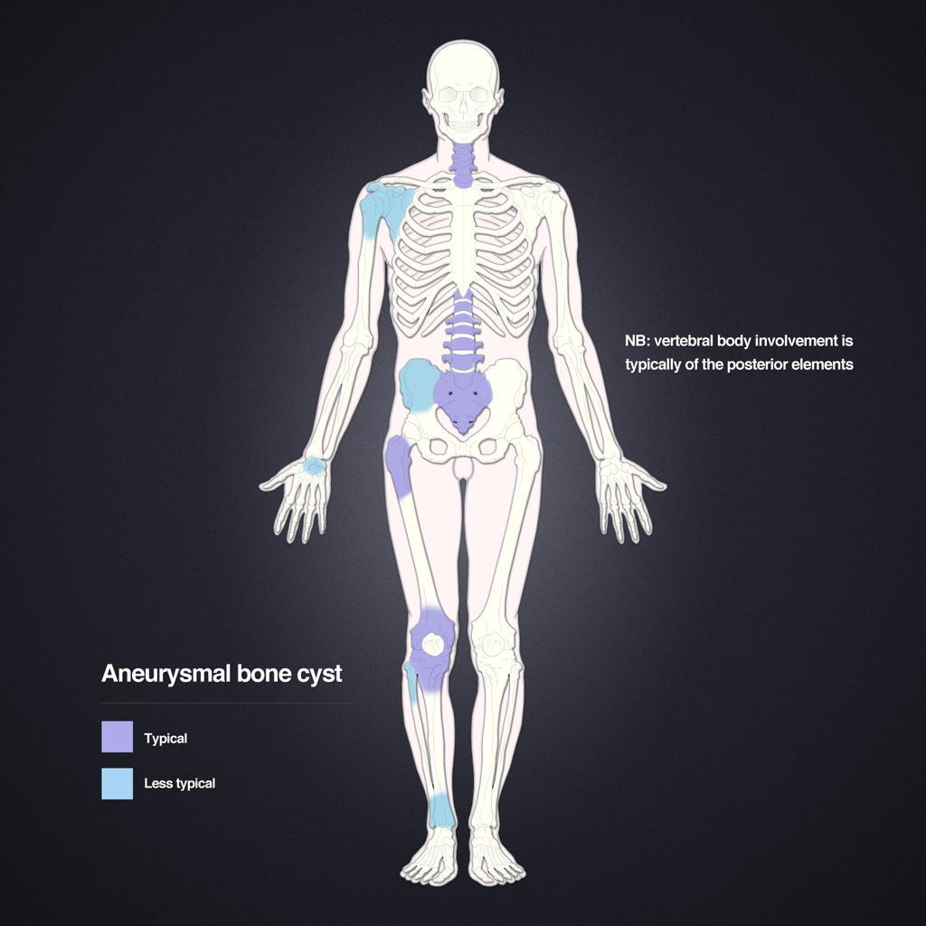 Kyste osseux anévrismal