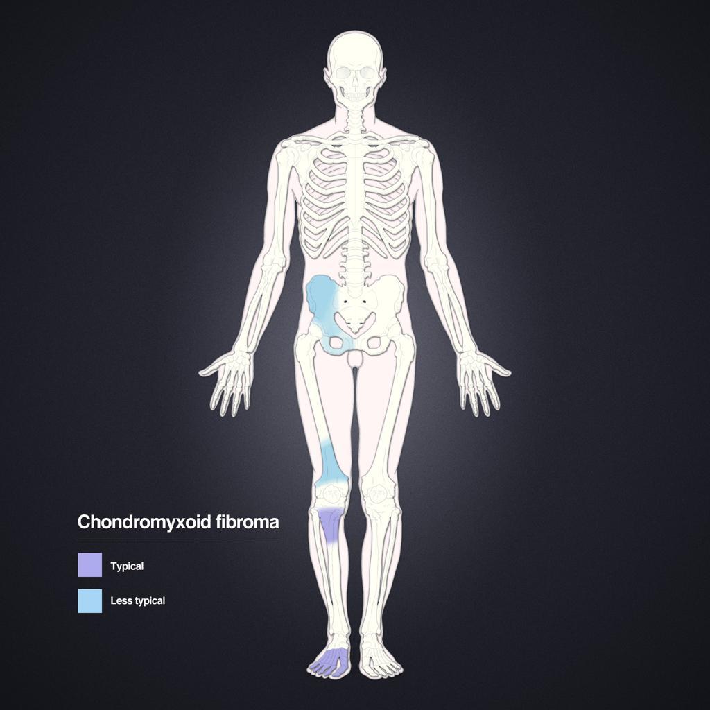 Fibrome chondromyxoïde