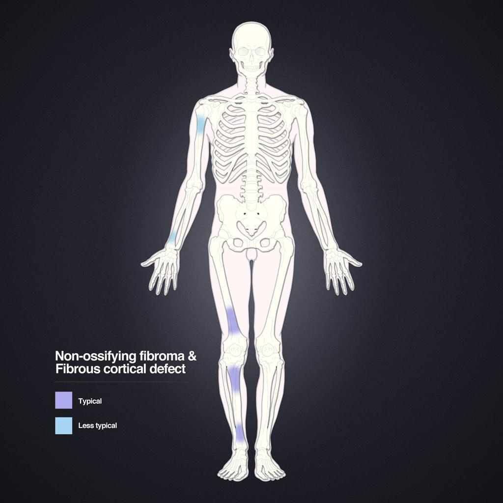 Fibrome non ossifiant