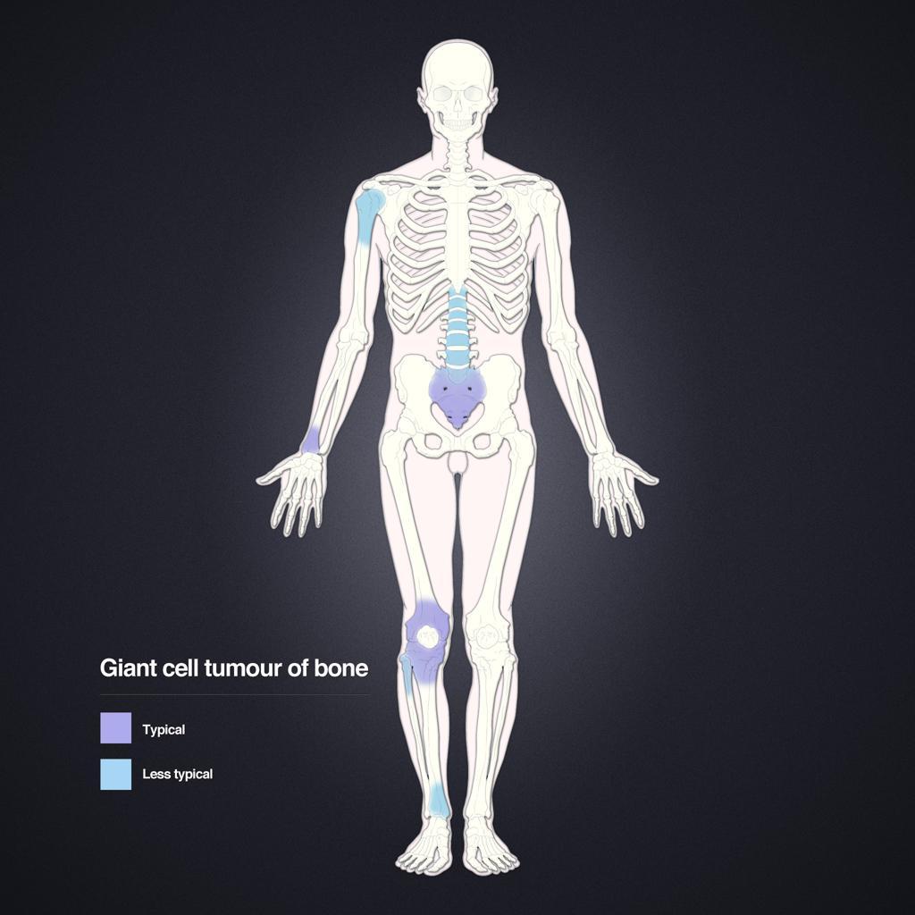 Tumeur à cellules géantes