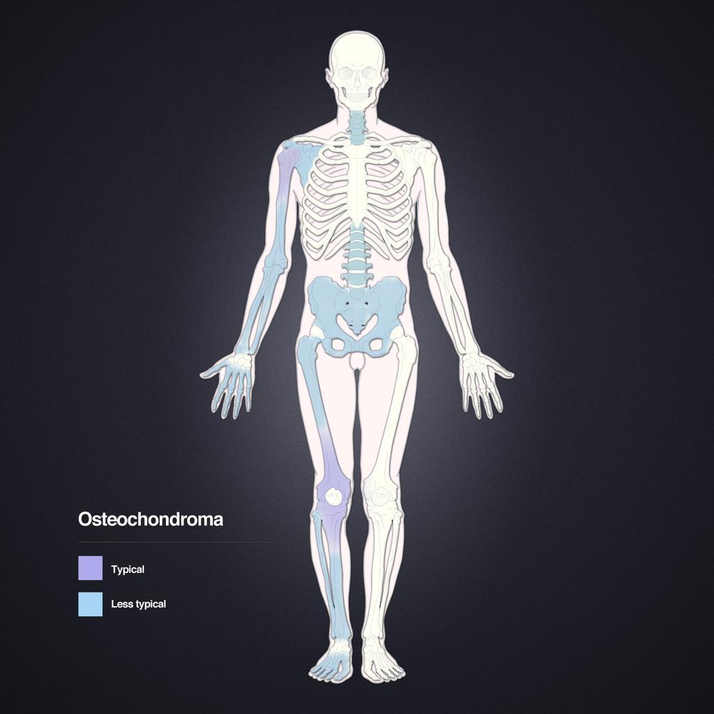 Ostéochondrome