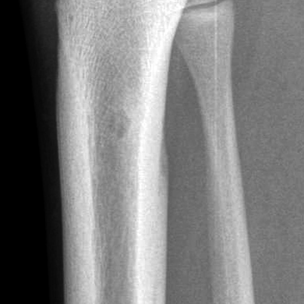 Ostéome ostéoïde